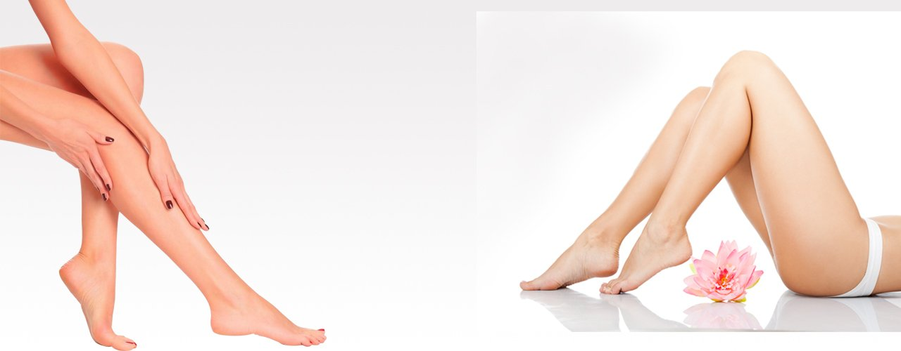 Varicose Vein Treatment Laser Ablation In Africa, UK, USA, India, Gujarat, Ahmedabad, Rajkot, Surat, Bhavnagar, Baroda, Amreli, Surendranagar