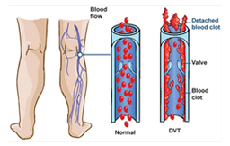 Dvt, Cdt, EVLT in Ahmedabad, Gujarat. India