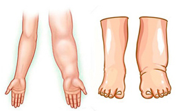 Lymphatic Edema Treatment in  Ahmedabad, Gujarat, India,